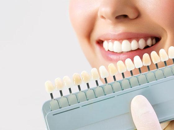 Clinica dental maestro. Comparación de blancos en blanqueamiento dental