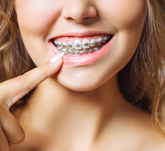 Clinica dental maestro. Chica con un buen mantenimiento de su tratamiento ortodóntico