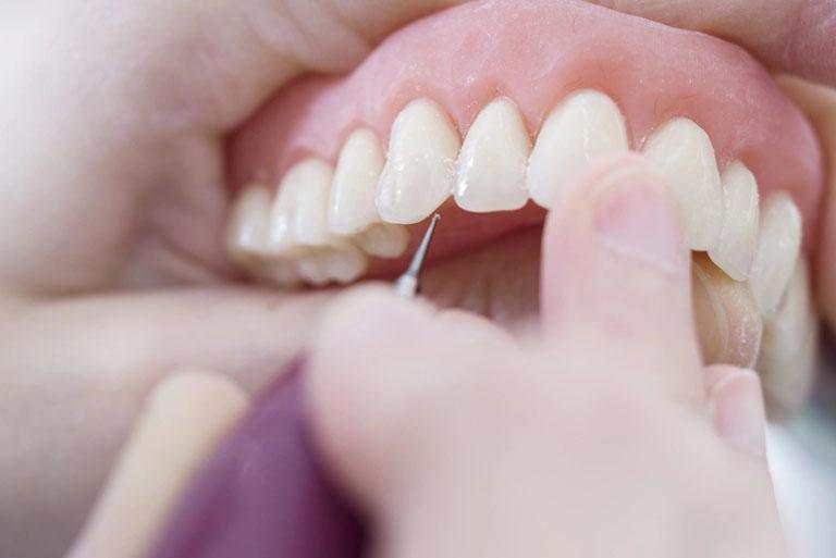 Relación entre encías y enfermedades cardiovasculares - Clínica Maestro, tu clínica dental en Oviedo.