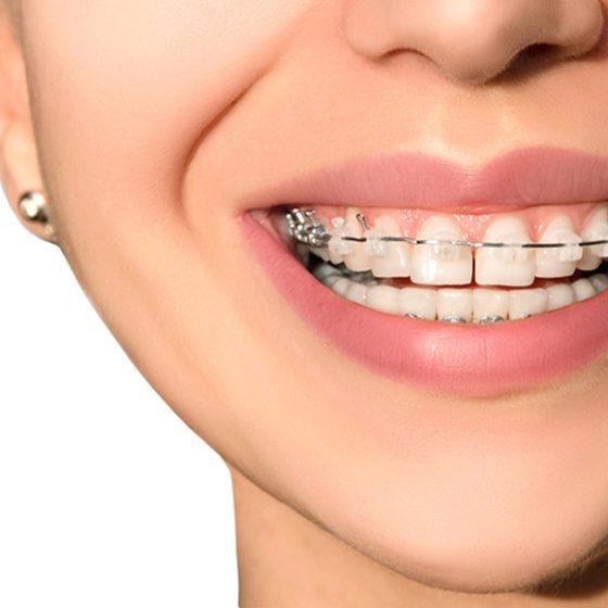 Consecuencias del diastema dental ▷ Clínica Dental Maestro