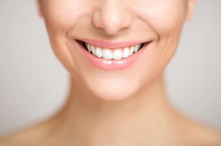 blanqueamiento dental1 1