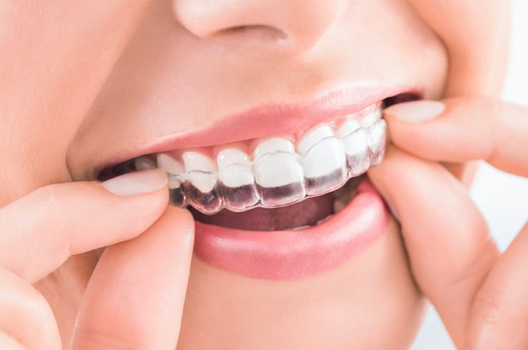 Clinica Dental Oviedo Invisalign
