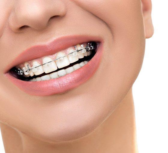 Ortodoncia Tineo