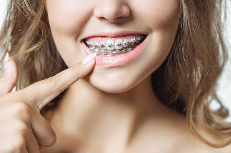 Motivos para plantearse un tratamiento de ortodoncia - Ortodoncia en Oviedo - Clínica Maestro