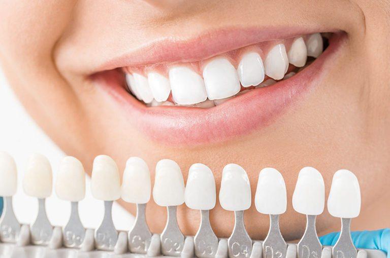 Cuánto dura un blanqueamiento dental