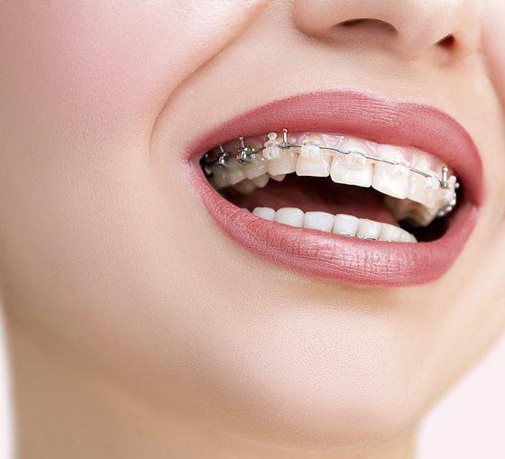 Consejos para cuidar tu ortodoncia