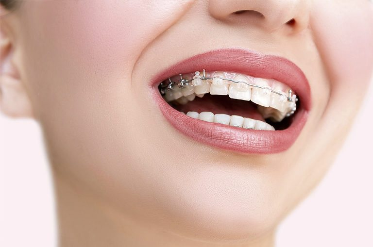 Cuida tu ortodoncia