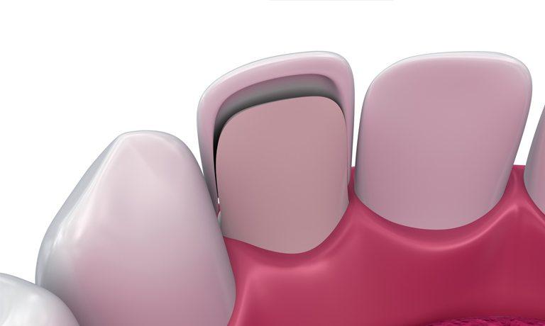 Cuida tus carillas dentales