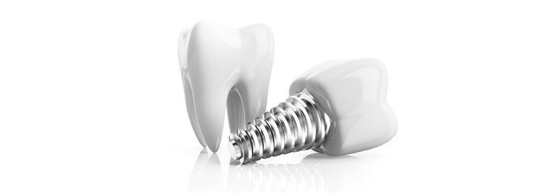 Cuánto duran los implantes dentales