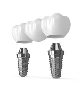 Mejores marcas de implantes dentales