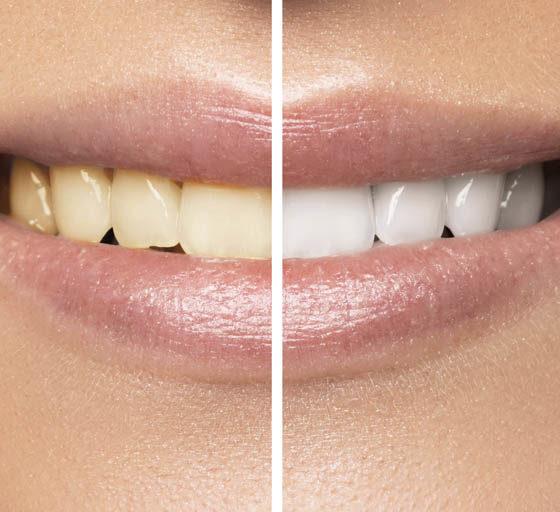 como evitar las manchas dentales