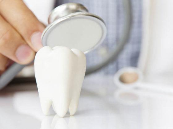 curiosidades sobre implantes dentales