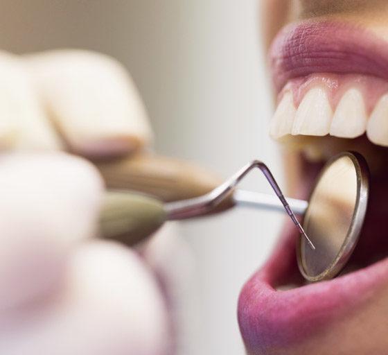 carillas dentales en oviedo