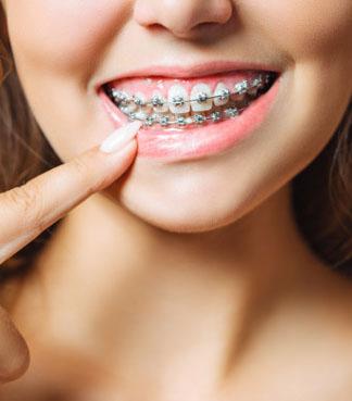 información ortodoncia oviedo
