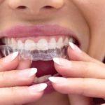 mejor ortodoncia para adultos