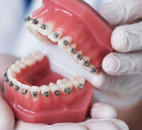 cuánto dura un tratamiento de ortodoncia. Ortodoncia en Oviedo. Clínica dental Maestro