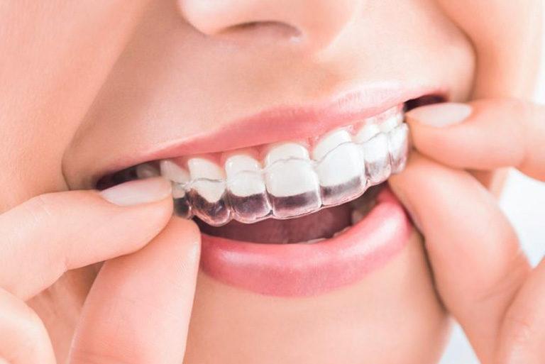 ortodoncia invisible en Oviedo