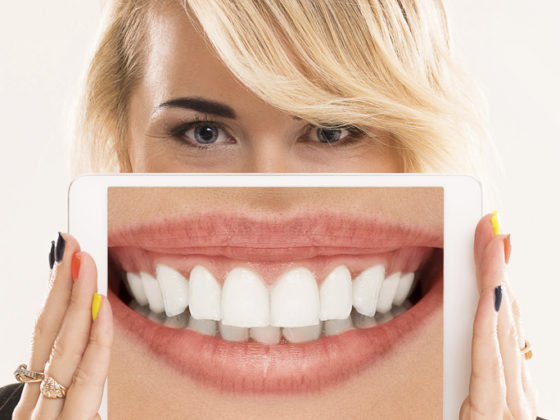 Qué pasa si no colocamos un implante dental. Implantes dentales en Oviedo