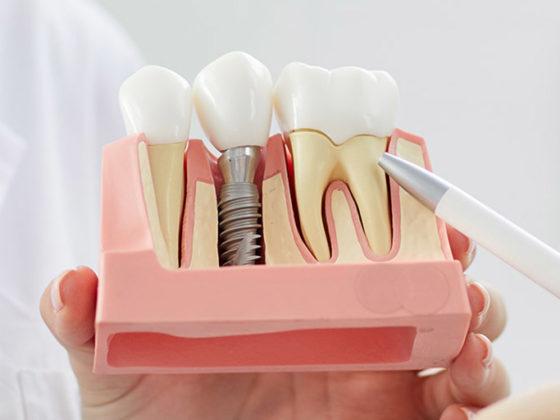 clinica dental maestro. Los implantes dentales son una solución definitiva para la perdida de dientes